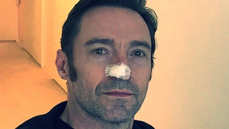 Hugh Jackman Has Sixth Skin Cancer Removed