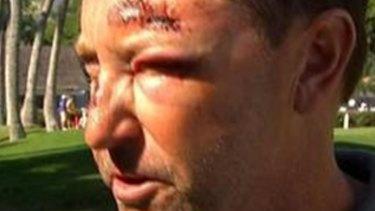 Injured: Golfer Robert Allenby.