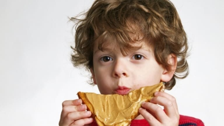 More than 80 per cent of children in the Melbourne trial were cured of their peanut allergy.