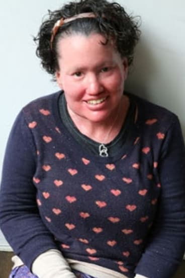 Writer and appearance activist Carly Findlay.