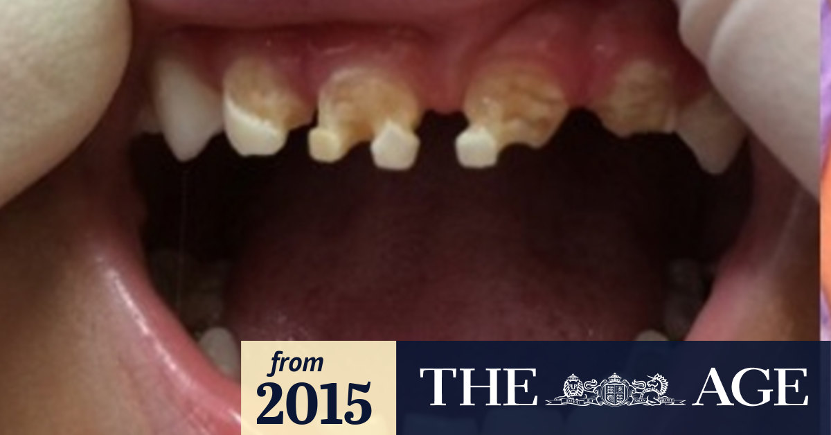 Kids As Young As 18 Months Needing Rotten Teeth Pulled Because Of Bad Decay