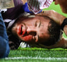 Concussed Broncos winger Corey Oates cleared to play Storm as Wayne Bennett blasts critics