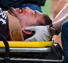Brisbane Broncos doctor to make final call on fitness of star winger Corey Oates