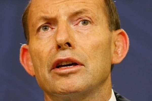 Tony Abbott defends $20 cut to Medicare rebate for short visits to the doctor