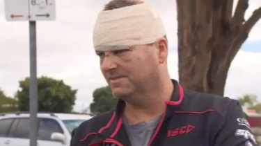 Not a good day: Malcolm Woodford was allegedly hit with a shovel at a remote campsite at Glenaire off the Great Ocean Road.