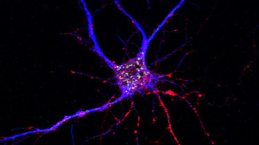 A potential drug target for Alzheimer's disease has been discovered, affecting both neurons and brain immune cells.