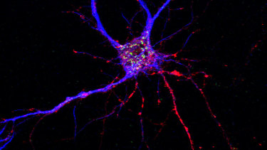 A potential drug target for Alzheimer's disease has been discovered, affecting both neurons (pictured) and brain immune cells.