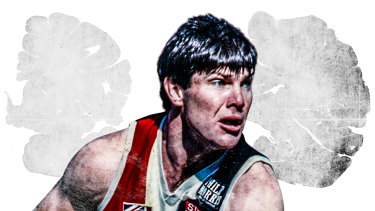 Danny Frawley died in late 2019, and it was revealed this week his brain showed signs of chronic traumatic encephalopathy (CTE)