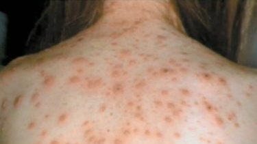About 30 per cent of adults with measles will be hospitalised, according to Queensland Health. (File image)