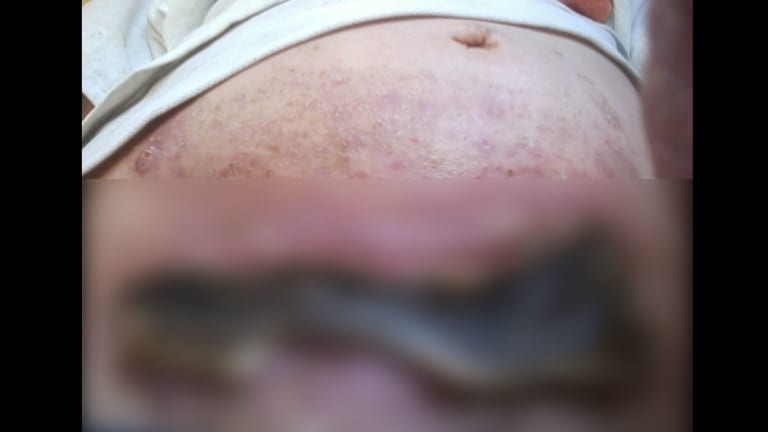 An image of the wound on Helen Lawson's stomach after she tried to treat her ovarian cancer with black salve, blurred because it is so confronting.
