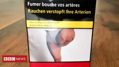 Man shocked to find his amputated leg on a cigarette packet