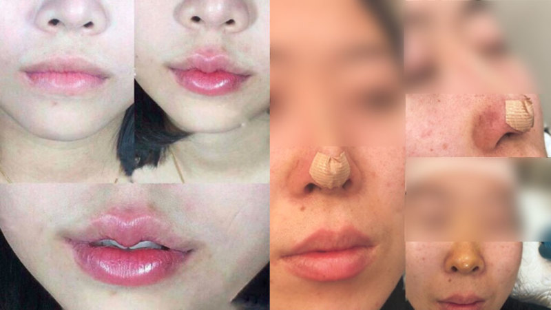 Cosmetic procedures: Plastic surgeons forced to fix rising