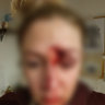 Woman knocked off bike, bashed by stranger in Perth's north
