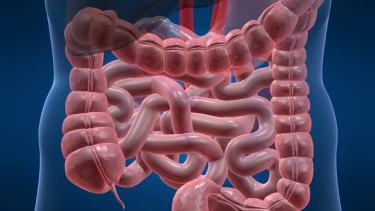 QIMR Berhofer research has identified a clear cause, and possible cure, for Crohn's.
