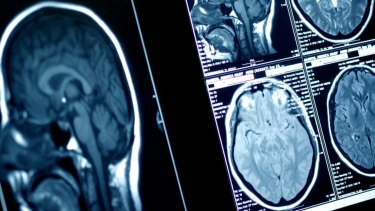 Canberra Hospital's medical imaging department has come under increased budget pressure