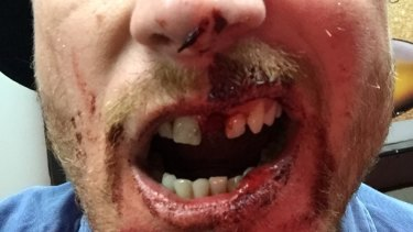 Steven Booth's bloodied and battered face after the attack.