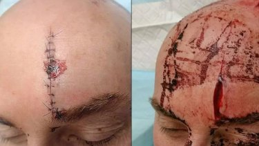 Police officer Andrew Swiftlost a litre of blood and received 25 stitches to his head after being attacked with a samurai sword.