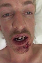 The Bullioh player suffered a broken jaw.