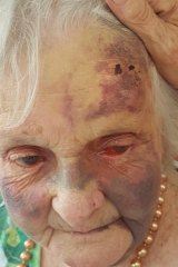 Frances Woolveridge was injured at a Japara aged care facility