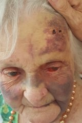 Frances Woolveridge was injured at a Japara aged care facility