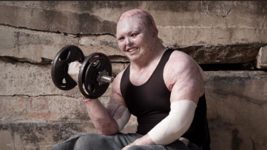 Dean Clifford suffers from a severe form of the genetic conditionepidermolysis bullosa, which causes severe skin irritation, but still hits the gym regularly ahead of his 40th birthday.