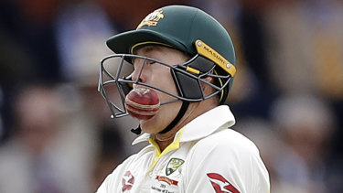 Marnus Lubuschagne gets hit in the grill by Jofra Archer.