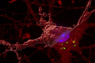 Researchers have identified how tau protein spreads around the brain to contribute to Alzheimer's disease.
