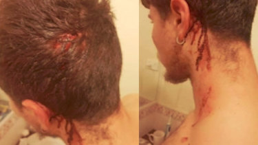 Chef Daniel Maetzing was grazed and bleeding after the attack.