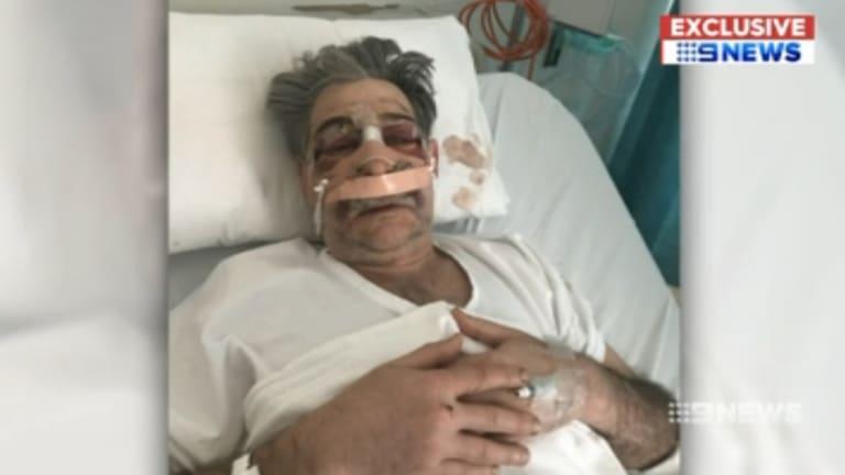 Dr Edmund Pribitkin in hospital after the assault.