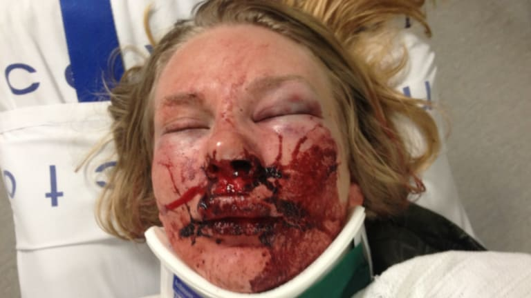 Chloe was punched and kicked in the head before she was sexually assaulted.