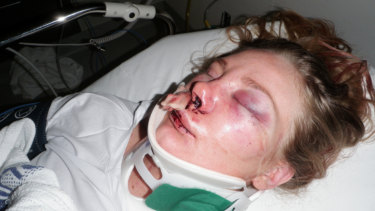 No piece of information about Chloe's attacker is too small, police say.