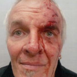 Ron Chapman after the attack.