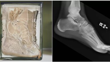 A cross-section of an elephant's foot, left, compared to a human foot, showing the striking similarities in bone structure.