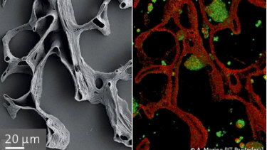 A 3D printed bone scaffold (left), and a bone scaffold being colonised by cells (right, cells in green). The scaffold is about the width of a human hair.