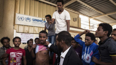 An Eritrean refugee in Cairo displays the wounds he received while being held captive by traffickers.