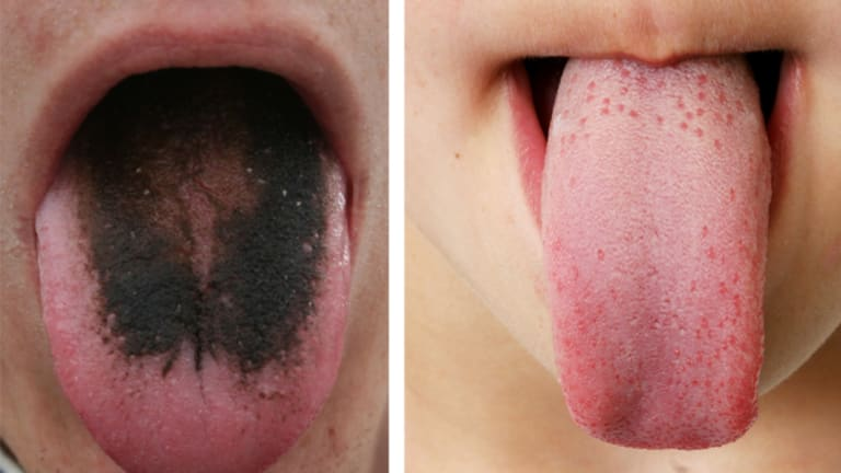 A medical condition known as black hairy tongue and a healthy tongue.