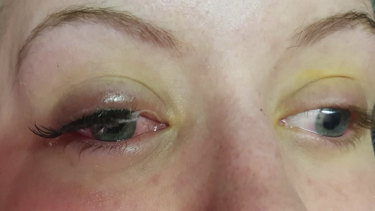 The Perth woman's eyes after the burns and midway through the removal.
