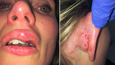 Dr Kim Proudlove's injuries after the alleged police assault.