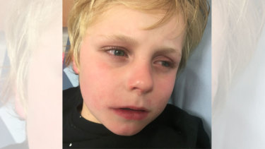 The naked boy knocked on the door of a Highett property at 2.45am on Thursday.