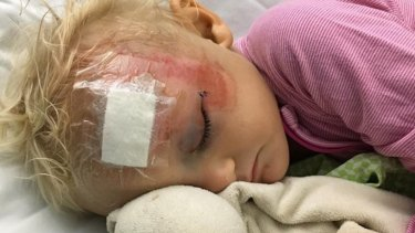 Clare, 18 months, after treatment for the quad bike accident.