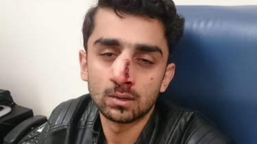 Mr Qaiser after the attack. He will likely need surgery for his nose.