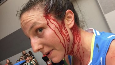 Canberra Capitals star Kelsey Griffin was busted open by an elbow from Asia Taylor in the WNBL.