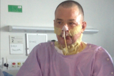 Mr Trevor suffered burns to 33 per cent of his body, mostly from his knees to his neck and the lower part of his face, requiring nine skin grafts