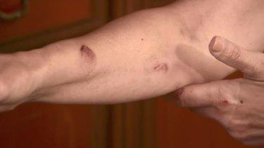 Nella Lettieri's injured arm.