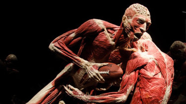 An exhibit from the Body Worlds Vital exhibition, which recently travelled from Melbourne to Sydney.