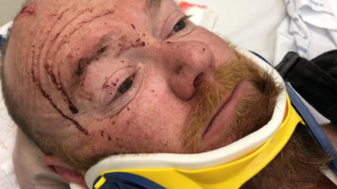 Senior Constable Thorne was left bloodied and bruised after the attack.