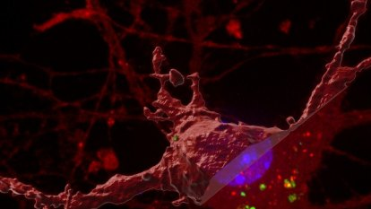 Research finds 'Trojan horse' spreading Alzheimer's-causing toxin