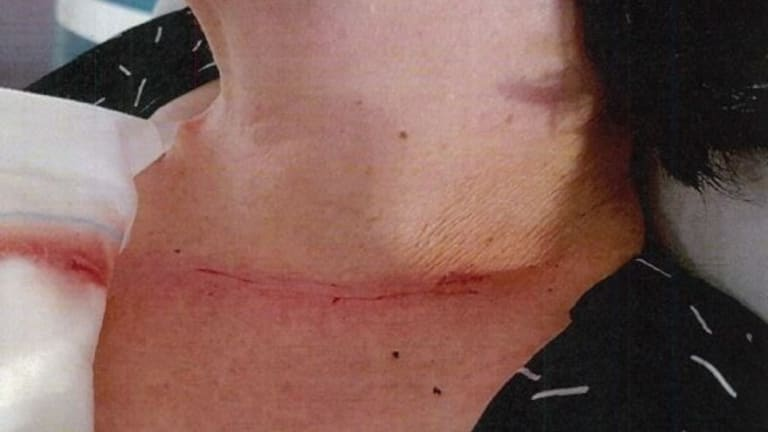 The woman's neck injury.