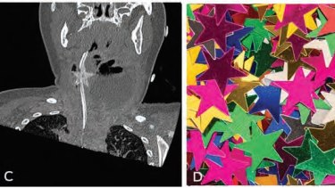 An ultrasound (left) showing the star-shaped confetti (right) lodged in the child's throat.
