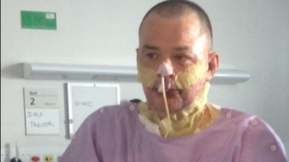 A barbecue explosion burnt a third of Dale's body, but he's turned it into a positive